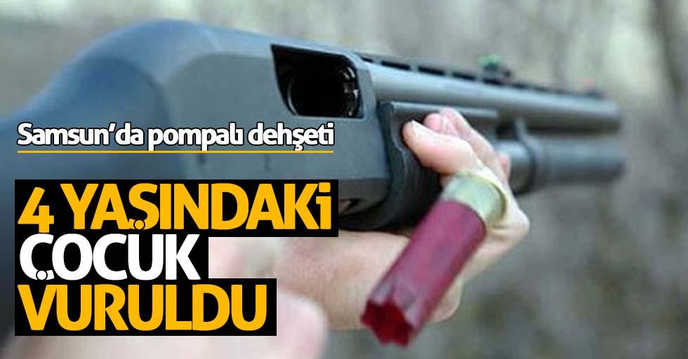 Samsun'da pompalı dehşeti! 4 yaşındaki çocuk vuruldu