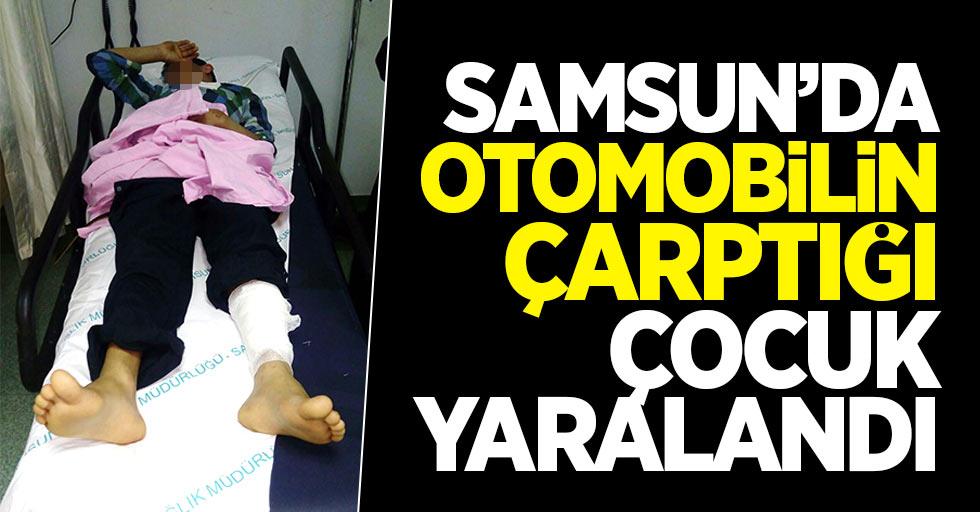 Samsun'da otomobilin çarptığı çocuk yaralandı
