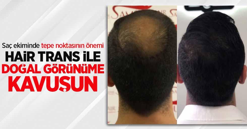 Saç ekiminde tepe noktasının önemi: Hair Trans ile doğal görünüme kavuşun
