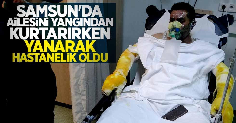 Samsun'da ailesini yangından kurtarırken yanarak hastanelik oldu