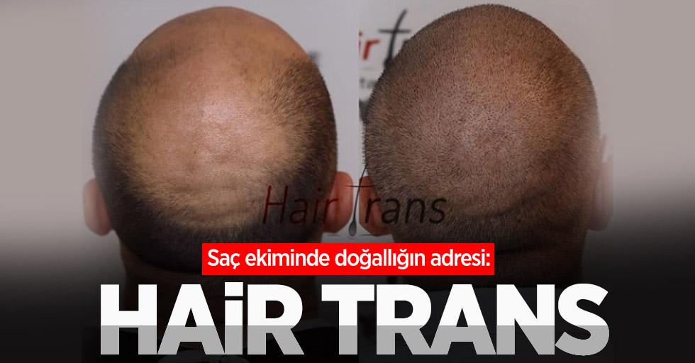 Saç ekiminde doğallığın adresi: Hair Trans