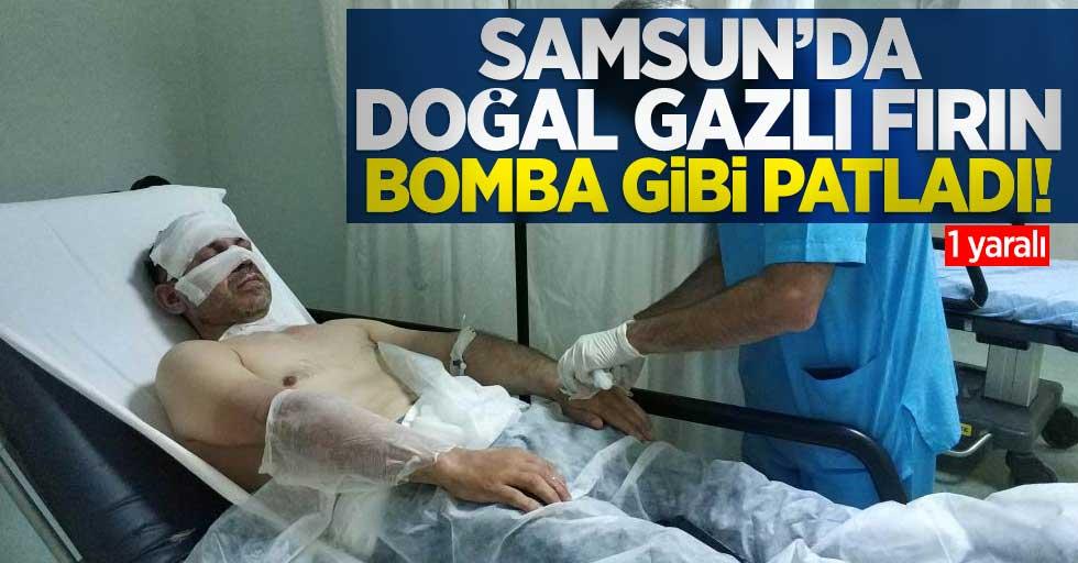 Samsun'da doğal gazlı fırın bomba gibi patladı! 1 yaralı