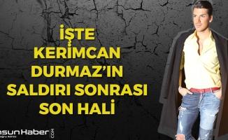 İşte Kerimcan Durmaz'ın Saldırı Sonrası Son Hali