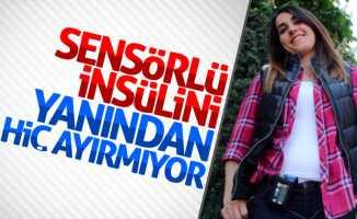 Samsun'da 29 yaşındaki kadın insülin pompası ile yaşıyor