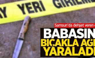 Samsun'da dehşet veren olay! Babasını bıçakla ağır yaraladı