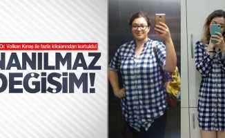 Op. Dr. Volkan Kınaş ile fazla kilolarından kurtuldu! İnanılmaz değişim