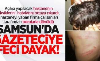 Samsun'da gazeteciye feci dayak! Doğalgaz borusu ile dövdüler
